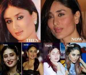 কারিনা কাপুর Kareena-kapoor-before-after-surgery-pics-300x262