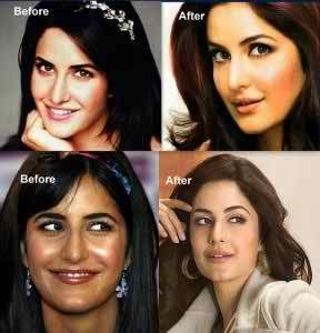 ক্যাটরিনা কাইফ katrina-kaif-before-after-surgery-pics-288x300