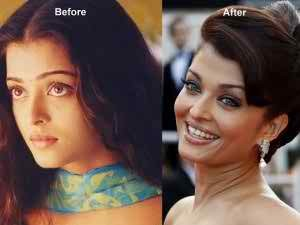 aishwarya-rai-before-after-surgery-pics ঐশ্বরিয়া রাই
