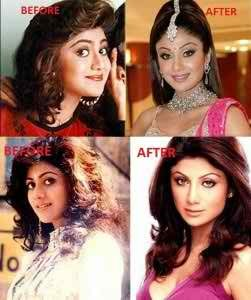 shilpa-shetty-before-after-surgery-images1-251x300